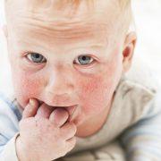 Czym jest marsz alergiczny?