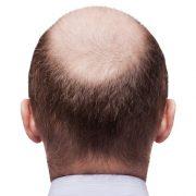 Czy można powstrzymać łysienie?